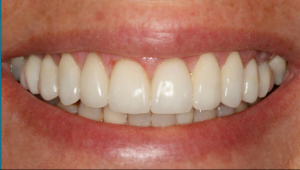Dental Centre Kenmore - Cosmetic Dentistry