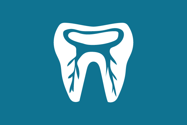 Dental Centre Kenmore - Root Canal