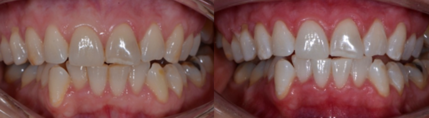 Dental Centre Kenmore - Tooth Whitening